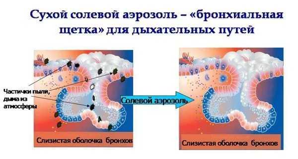 Механизм воздействия галотерапии на организм